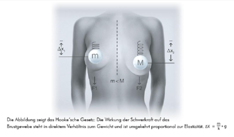 B-Lite Implantate